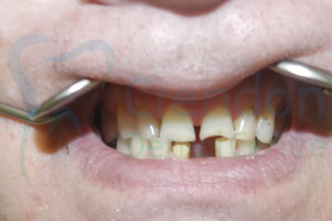 Composite (tooth coloured) Fillings | Dentist High Wycombe